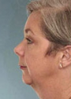 Facelift Before & After Patient #292