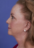 Facelift Before & After Patient #315