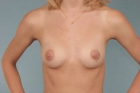 Breast Augmentation Before & After Patient #403
