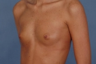 Breast Augmentation Before & After Patient #408