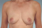 Breast Augmentation Before & After Patient #413