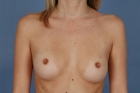 Breast Augmentation Before & After Patient #422
