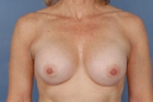 Breast Augmentation Before & After Patient #433