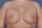 Breast Lift Before & After Patient #479