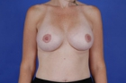 Breast Lift Before & After Patient #485