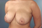 Breast Lift Before & After Patient #490