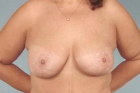 Breast Lift Before & After Patient #495
