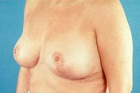 Breast Lift Before & After Patient #503
