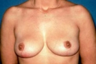 Breast Reduction Before & After Patient #528
