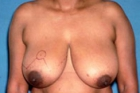 Breast Reduction Before & After Patient #531