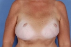 Breast Reconstruction Before & After Patient #506
