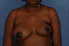 Breast Reconstruction Before & After Patient #511