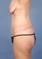 Body Lift Before & After Patient #132