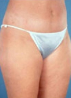 Tummy Tuck Before & After Patient #213