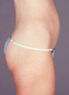 Tummy Tuck Before & After Patient #230
