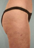 Liposuction Before & After Patient #160