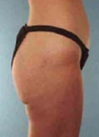 Liposuction Before & After Patient #176