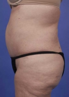 Liposuction Before & After Patient #182