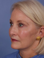 Facelift Before & After Patient #334