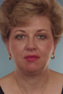 Blepharoplasty Before & After Patient #253