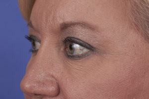 Blepharoplasty Before & After Patient #274