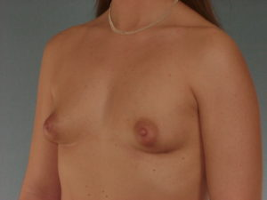 Breast Augmentation Before & After Patient #378