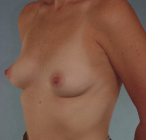 Breast Augmentation Before & After Patient #383