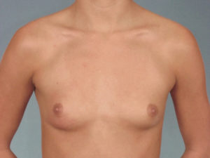 Breast Augmentation Before & After Patient #393