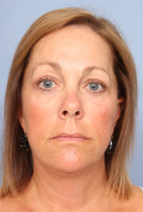 Facelift Before & After Patient #327