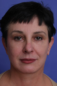 Facelift Before & After Patient #322
