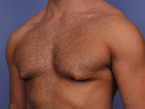 Gynecomastia Before & After Patient #534