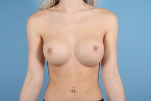Breast Augmentation Before & After Patient #472