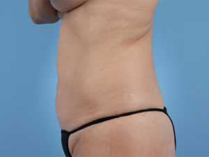 Tummy Tuck Before & After Patient #196