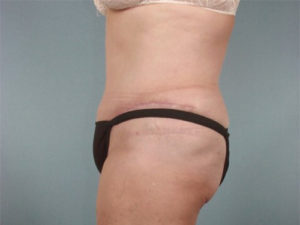 Tummy Tuck Before & After Patient #208