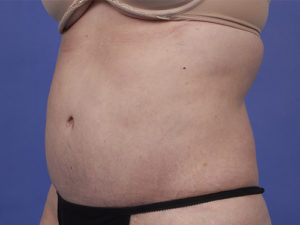 Tummy Tuck Before & After Patient #235
