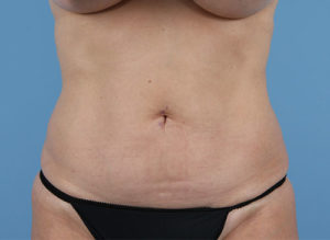 Tummy Tuck Before & After Patient #246