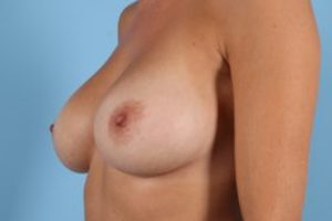 Breast Augmentation Before & After Patient #446