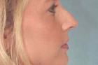 Rhinoplasty Before & After Patient #345