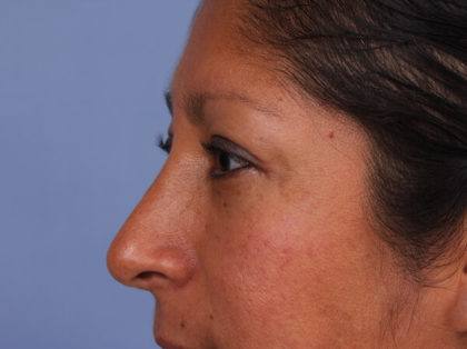 Rhinoplasty Before & After Patient #2297
